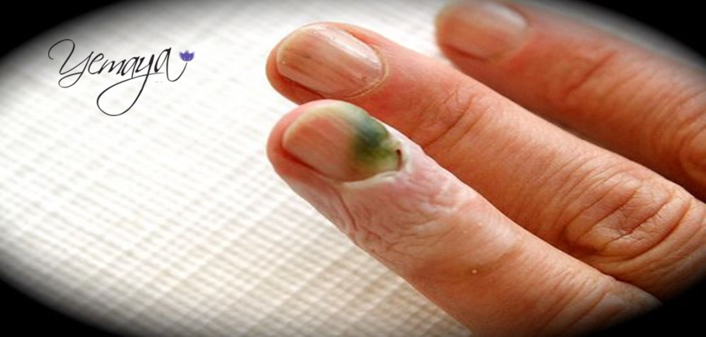 Finger-and Toenail colour can be a health indicator